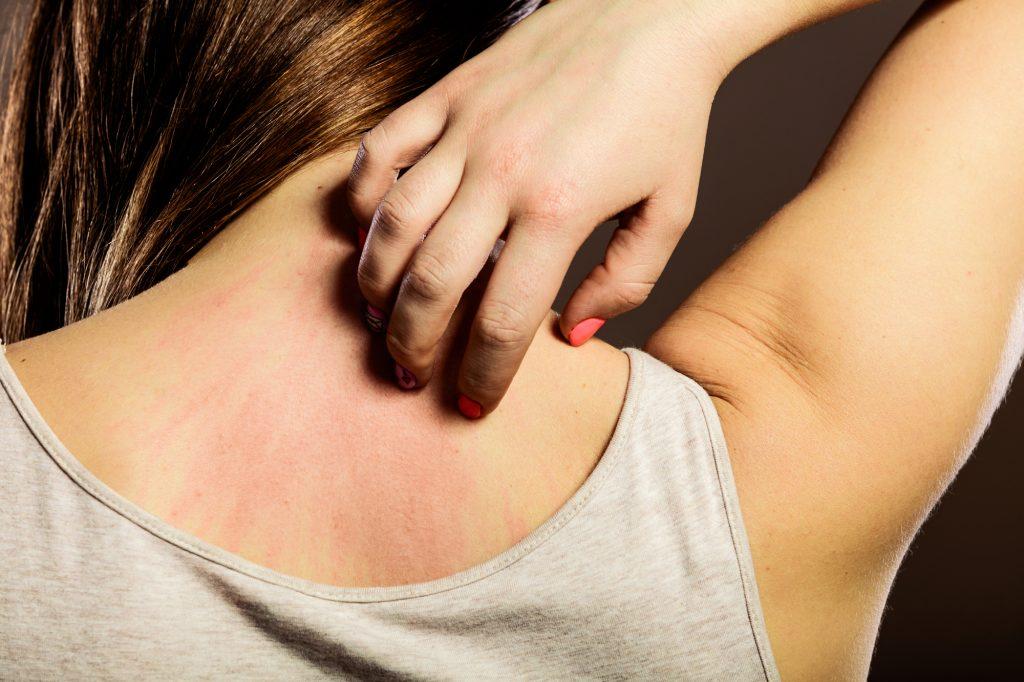 Eczema-main